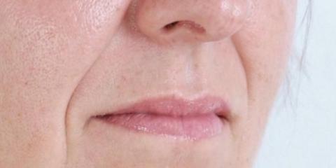Геть маску зневіри! Ліпофілінг носогубних складок