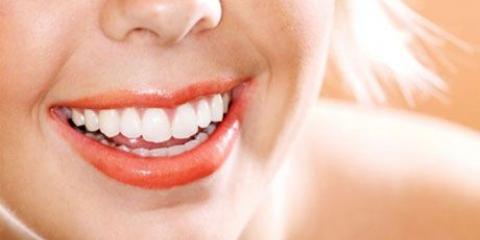 Фотовідбілювання зубів - сучасне рішення для красивої посмішки