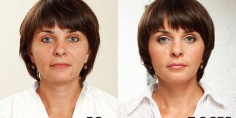 Пластика особи: до і після. Робити чи не робити?