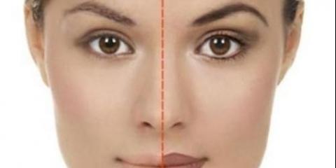 Правила догляду! Послепроцедурной період догляду за шкірою дуже важливий.