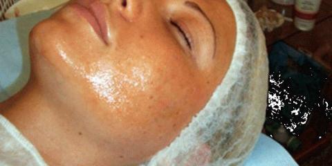Сяюча шкіра: чистка обличчя у косметолога
