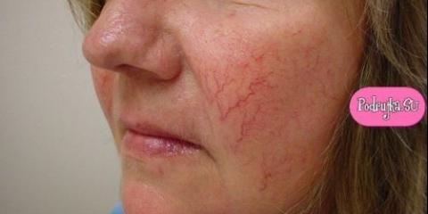 Догляд за старою шкірою з куперозом.