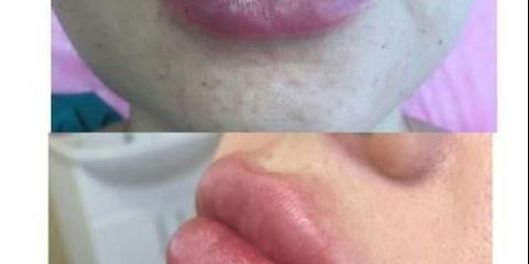 Збільшення обсягу губ і корекція їх форми - це одна з найбільш затребуваних процедур в косметології.